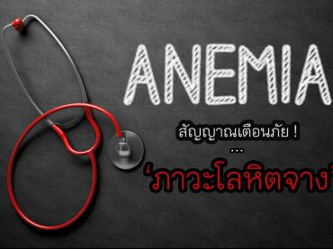 64181071 - medical concept: anemia -  black chalkboard with hand drawn text and red stethoscope. top view. medical concept: anemia handwritten on black chalkboard. 3d rendering.